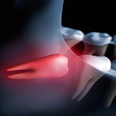 Cirugía Oral para anomalías de muelas del juicio