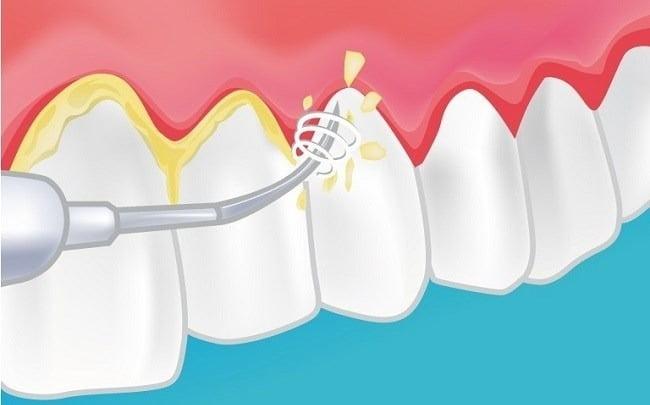 Claves de la limpieza dental. Somos expertos en limpieza dental en Dos Hermanas