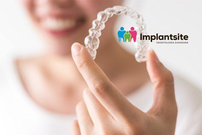 Mujer sostiene alineador de ortodoncia invisible, en Clínica Implantsite de Dos Hermanas somos expertos en Invisalign