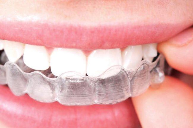 boca con férula de ortodoncia invisible invisalign