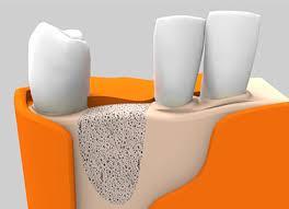 recreación del tratamiento de regeneración ósea en Clínica dental Implantsite, dentista en Dos Hermanas